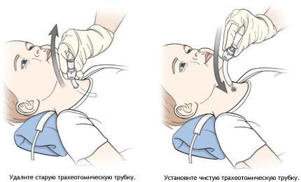 smena-traheostomicheskoy-trubki